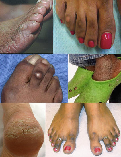0babe41c1 UGLY FEET TO PRETTY FEET GUIDE » Best Skincare Products!