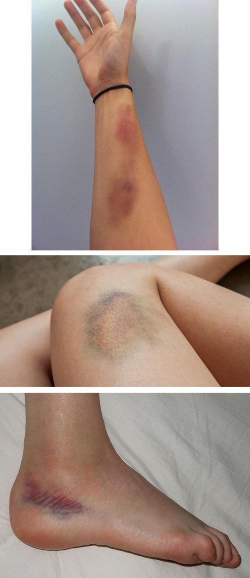 bruises, skin whitening, skin bleaching, skin lightening