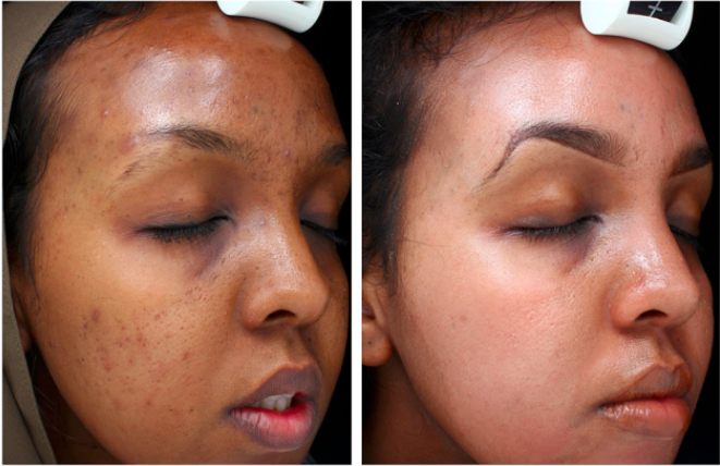 TCA Peel Before & After