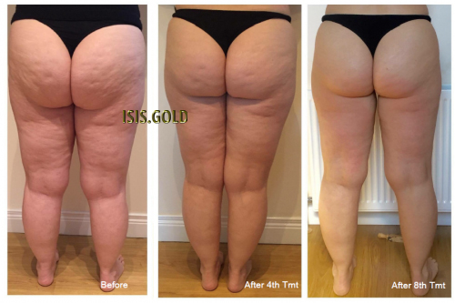 Caucasian woman wearing black panties with cellulite on buttocks and legs, cellulite before and after, cellulite removal, how to get rid of cellulite on thighs, cellulite removal, best cellulite treatment