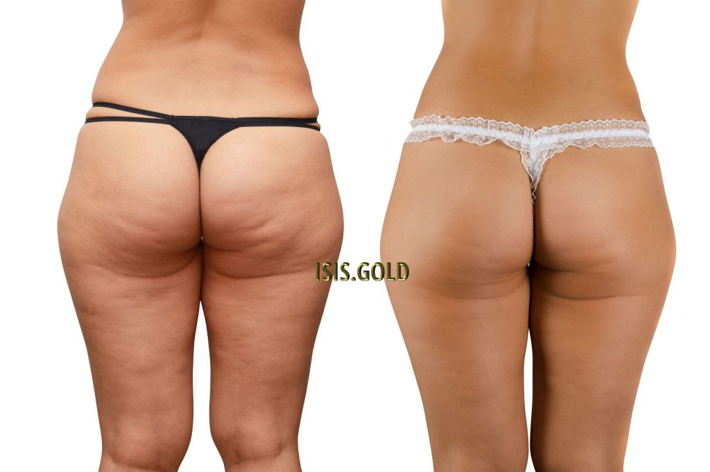 woman with cellulite on buttock and thighs,cellulite before and after, how to get rid of cellulite before and after, how to get rid of cellulite on thighs and buttocks, cellulite reduction