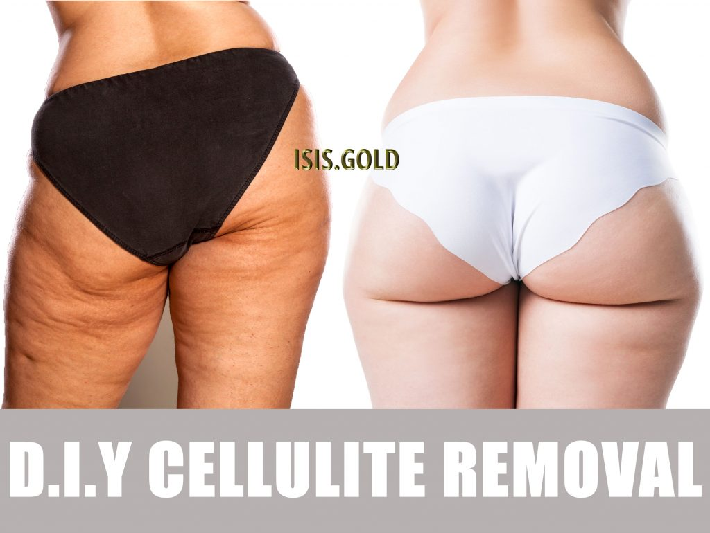 woman with cellulite on buttock and thighs, how to get rid of cellulite before and after, how to get rid of cellulite on thighs and buttocks, cellulite reduction