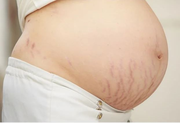 Stretchmarks Pregnant Belly
