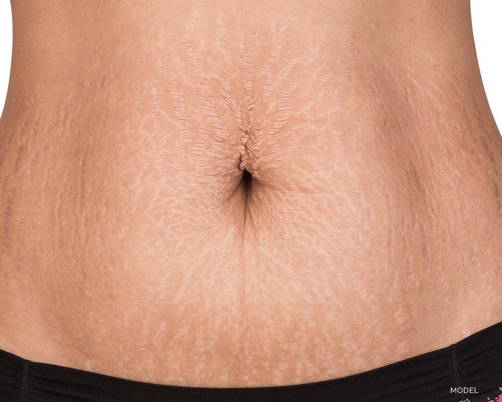 Black Woman With Stretchmarks on Belly