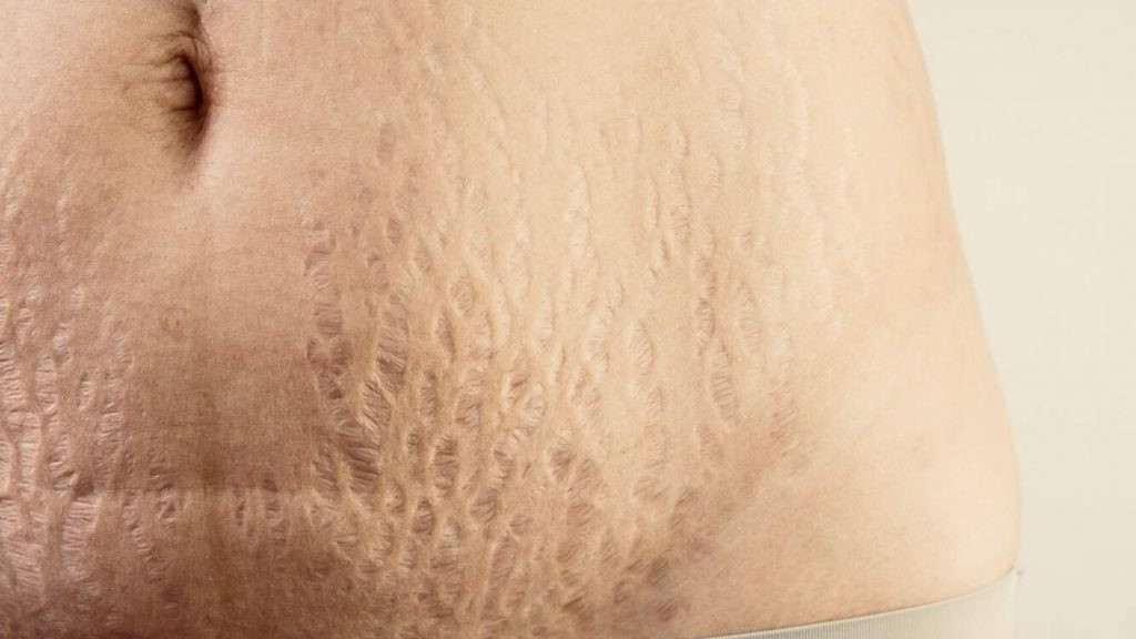 Asian Woman With Stretchmarks on Belly